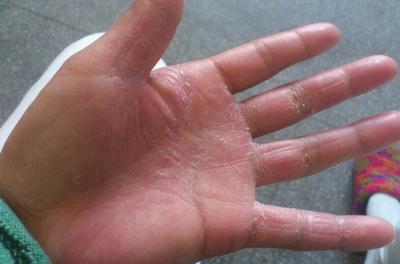 手癣怎么治疗才好