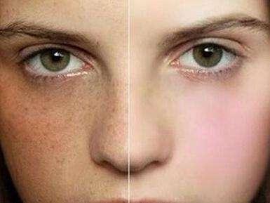 面部黄褐斑的症状图是什么样